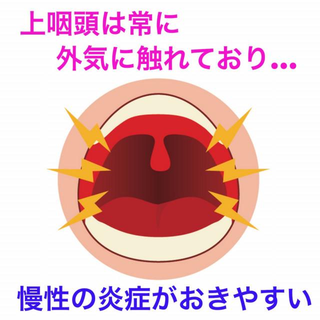 上咽頭は常に外気に触れており、慢性の炎症が起きやすい