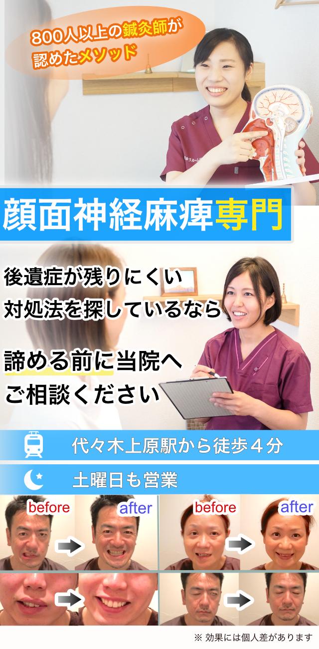 顔面神経麻痺専門 後遺症の残らない対処法を探しているなら諦める前に当院へご相談ください